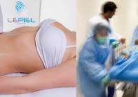Mitos y verdades de la liposucción y la ultra lipocavitacion