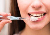 Blanqueamiento dental en Barcelona para lucir la sonrisa que deseas